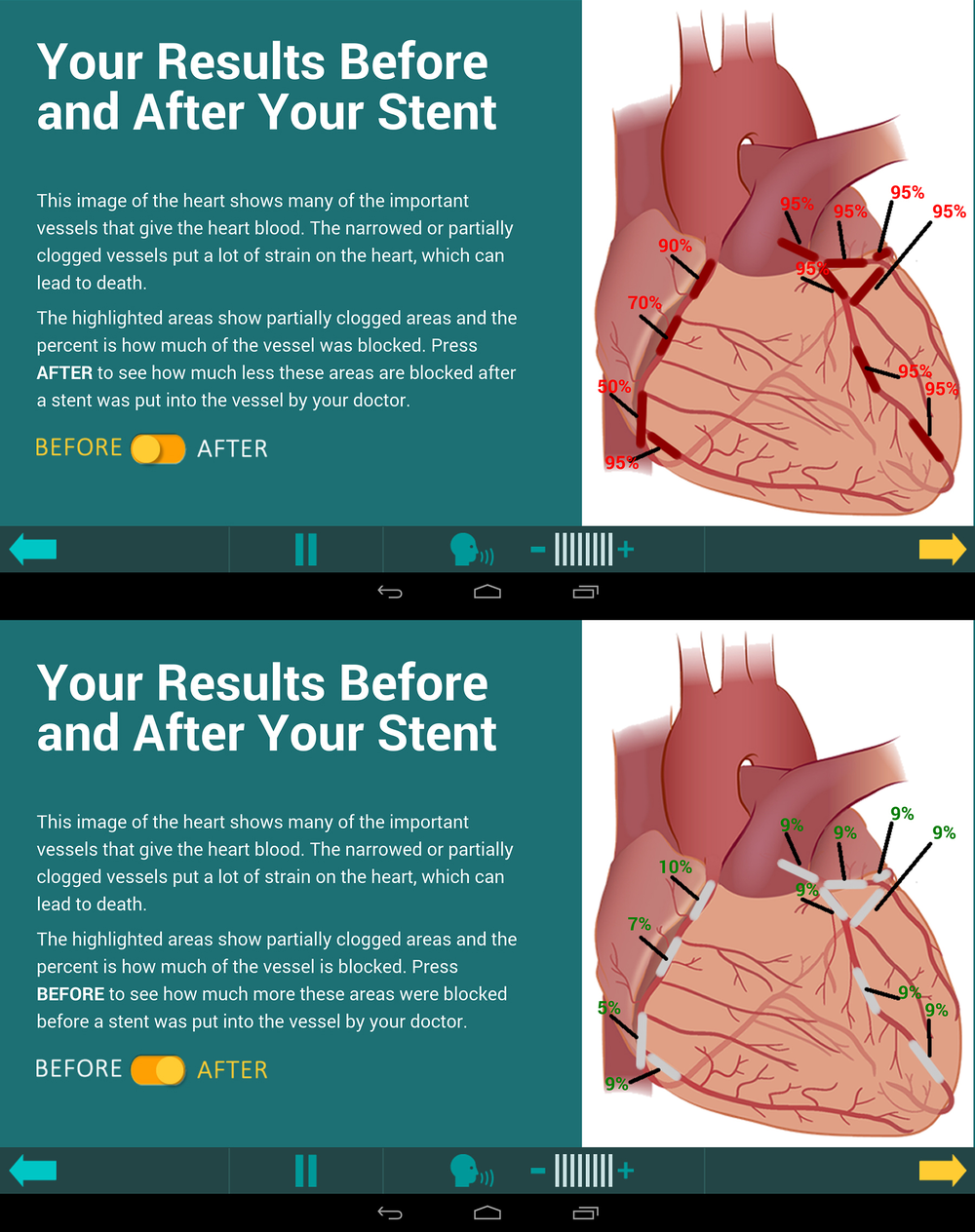 "Screengrab of demo ""before"" and ""after"" heart health information from a tablet application"