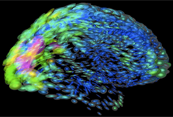 This image of the human brain uses colors and shapes to show neurological differences between two people. The blurred front portion of the brain is associated with complex thought. Credit: Arthur Toga, University of California, Los Angeles