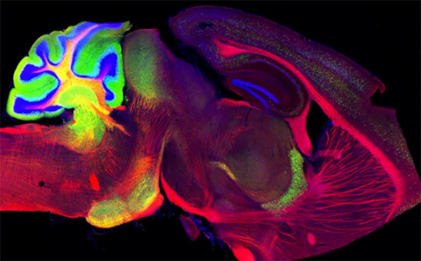 'A Clear Mind,' by Chris Seward, a graduate student in cell and developmental biology, was one of the winners in U of I's annual Image of Research Competition.