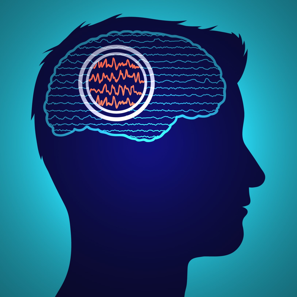 Illinois and Mayo Clinic team up to develop improved method to identify seizure-causing regions in the brain