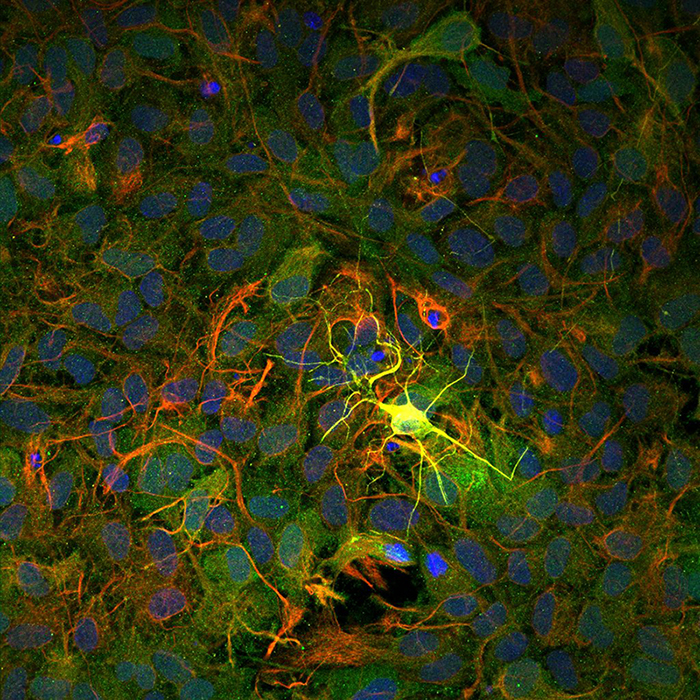 A yellow neuron in a mouse hippocampus.