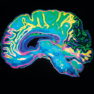 Colorful image of MRI scan of a human brain.