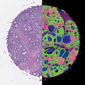 Dye showing different types of human tissue.